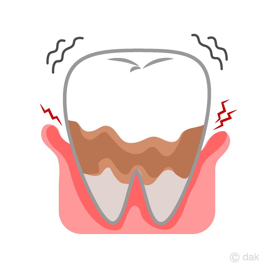歯周病でぐらつく歯の無料イラスト素材イラストイメージ